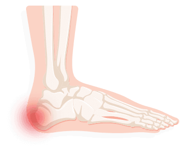 in the meantime, doctors may prescribe over-the-counter or prescription pain  medication or have you wear a cast to protect the heel bone