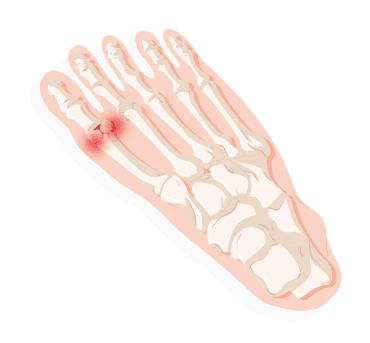 Identifying Your Foot Pain 2020 Treadmillreviews Net