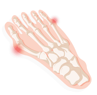 Identifying Your Foot Pain 2019 | TreadmillReviews net